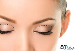 Beautify eyelids