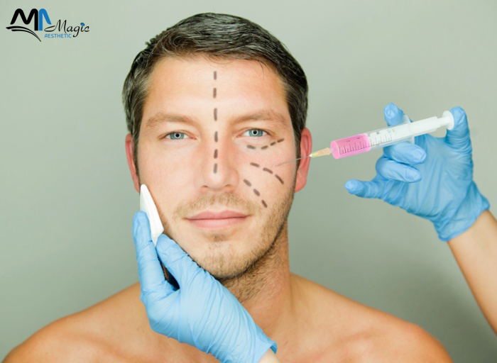 mesotherapy Injection for the face