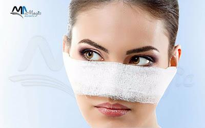 الجراحة التصحيحية التجميلية لكسور الوجه