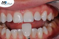 اللومينير للأسنان